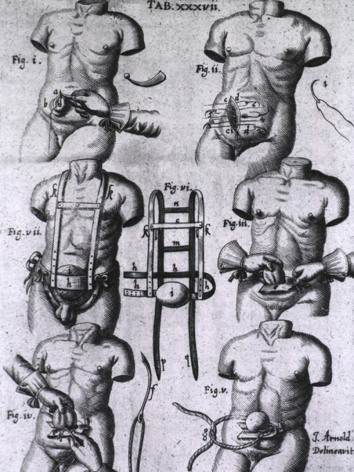 <p>Seven vignettes showing the procedure for a hernia repair.</p>