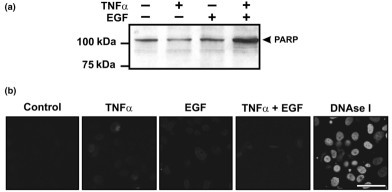 Apoptosis is not observed following tumor necrosis factor alpha (TNF-α) and/or epidermal growth factor (EGF) treatment. Confluent monolayers of chondrocytes were treated with vehicle, TNF-α (30 ng/ml), EGF (10 ng/ml) or TNF-α + EGF for 24 hours. (a) Early stages of apoptosis were assayed by immunoblot with an antibody specific for intact and cleaved forms of poly(ADP ribose) polymerase (PARP). No cleavage of PARP (i.e. appearance of a band at 89 kDa) was detected following any of the treatments. Blot shown is representative of three independent experiments. (b) Apoptosis-induced DNA strand breaks were examined by in situ labeling (terminal deoxynucleotidyl transferase-mediated dUTP nick end-labeling [TUNEL]) and imaged using confocal microscopy. No TUNEL labeling was detected with any of the treatments. Cells treated with DNAse I to induce DNA breaks served as a positive control. Bar = 50 μm. Images are representative of three independent experiments.