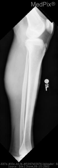 Normal Tib/Fib, no evidence of soft tissue mass.
