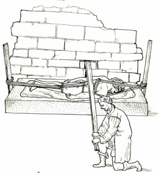 A drawing showing Galen's method of correction of spinal deformity on a device similar to the Hippocratic scamnum by applying pressure with the use of a board attached in the wall.