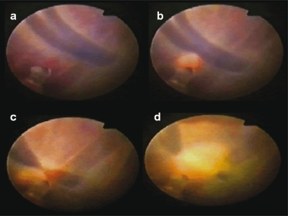 (a) Fetoscopic view of superficial inter-twin vascular anastomoses in a TTTS stage III pregnancy at 22 weeks of gestation. (b,d) Fetoscopic laser photocoagulation of superficial inter-twin anastomoses.