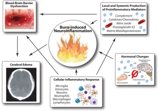 Pathophysiological events resulting in blood–brain barrier breakdown and development of cerebral edema following burn injury. Following major burn trauma, a robust systemic inflammatory response is triggered. Proinflammatory mediators are produced by various immune cells, resulting in breakdown of the blood–brain barrier, with subsequent activation of resident central nervous system cells, such as microglia and astrocytes, which respond with further production of inflammatory markers, cumulating in a massive neuroinflammatory response and subsequent life-threatening cerebral edema. In parallel, significant hormonal changes are triggered, resulting in a severe hypermetabolic state. CRF, corticotropin-releasing factor; ACTH, adrenocorticotropic hormone.