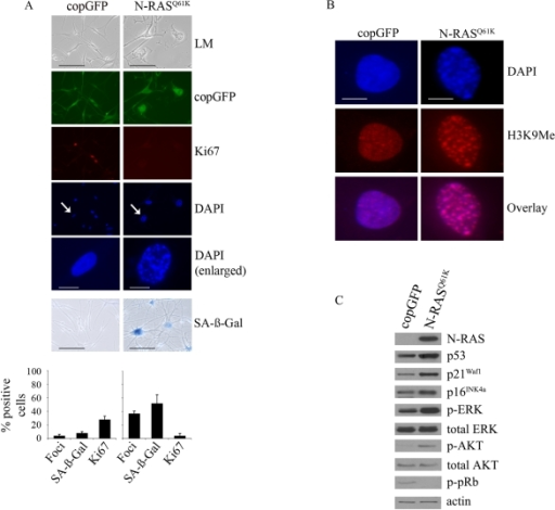 Oncogenic                                                N-RASQ61K induces proliferative arrest and senescence of human                                                melanocytes.                                        (A) Human melanocytes were transduced with                                        lentiviruses expressing N-RASQ61K or copGFP control. The                                        efficiency of transduction was controlled with the co-expression of copGFP                                        and was consistently above 90%. Cell proliferation (Ki67), chromatin                                        condensation (DAPI), and the appearance of increased SA-β-Gal activity were                                        analyzed and quantitated 15 days after infection. Percentage of cells                                        positive for the indicated marker is shown in histograms, which correspond                                        to the mean ± s.d. of at least two independent transduction experiments                                        from a total of at least 300 cells. Cells enlarged to show DAPI-stained                                        chromatin foci are indicated with arrows (bar =10 μm). LM, light                                        microscopy (bar=100μm). (B) Human                                        epidermal melanocytes infected with lentiviruses expressing N-RASQ61K                                        or copGFP were stained with DAPI and antibodies to H3K9Me, 15 days post                                        transduction (bar =10 μm). (C)                                        Expression of the indicated proteins was determined by western blot                                        analysis 15 days after infection of human epidermal melanocytes with                                        lentiviruses expressing N-RASQ61K or copGFP control.
