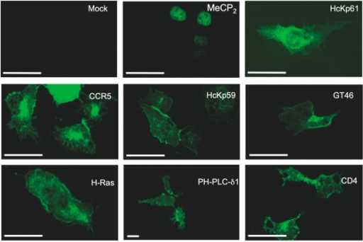 Localisation of GFP-tagged proteins overexpressed in HEK-FcγRII cells.HEK-FcγRII cells transiently transfected 48 hours earlier with constructs encoding the indicated GFP-tagged proteins were imaged by fluorescence microscopy. Although only nine transfectants are shown here for reasons of space, the localisation of each one of the proteins tested in this study was analyzed and found to conform to the localisation reported in the literature (see Table 1 and 2). Scale bars represent 50 µm.