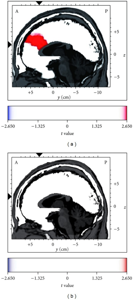 Enhanced theta current density in the anterior cingulate cortex (ACC) after the administration of the herbal nasal drop (a), but not the saline nasal drop (b), as analyzed by the voxel-by-voxel paired t statistics with low-resolution electromagnetic tomography (LORETA), t(13) = 2.65, P < .025. The figure shows the sagittal images at the level of maximal differences between the baseline and the post-intranasal administration time points. The x, y and z Talairach coordinates are −3, 31 and 22, respectively. Red color indicates the source location of significantly increased electrical activity in the brain at post-intranasal administration.