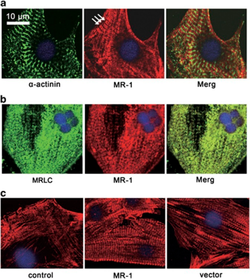 Subcellular localization and organization of MR-1 in cardiac myofibrils indicated by antibody of MR-1, α-actinin and MLC-2. (a) Double immunofluorescent staining of MR-1 (red) with α-actinin (green) showing regular striated pattern of MR-1 (red) in the areas where α-actinin (green) is negatively stained. (b) MR-1 is co-localized with MLC-2 and merged in A-band. (c) Staining of MR-1 in neonatal rat cardiomyocytes. Control: the punctated, thin, rudimentary filaments of MR-1 are shown in the normal cultured cardiomyocytes. MR-1: striated pattern of MR-1 staining shown in a cardiomyocyte transfected with MR-1. Vector: both nonstriated and striated MR-1 filaments shown in one cardiomyocyte transfected with vector plasmid.