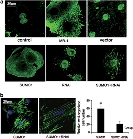 MR-1 is necessary for myomesin-1 translocation and SUMO-1-induced promotion of sarcomere organization. (a) Immunofluorescent staining of myomesin-1 showing translocation of myomesin-1 in neonatal rat cardiomyocytes. Myomesin-1 predominantly localized in the nucleus in primary cultured neonatal rat cardiomyocytes (control). With MR-1 transfected into cardiomyocytes for 24 h, myomesin-1 translocated to cytoplasm (MR-1). Transfection with pcDNA3.1 plasmid showed localization of myomesin-1 similar to the control (vector). On transfection with small ubiquitin-like modifier-1 (SUMO-1), myomesin-1 shifted to cytoplasm similar to with MR-1 transfection. Myomesin-1 was localized in the nuclear area with RNAi silencing (RNAi). Transfection with SUMO-1 in MR-1-silenced cardiomyocytes showed that myomesin-1 localized in nucleus and peri-nuclear area (SUMO-1+RNAi). (b) Silencing of MR-1 attenuated SUMO-1-induced promotion of sarcomere organization as detected by FITC-labeled phalloidin. Sarcomere organization with SUMO-1 transfected into cardiomyocytes for 16 h (SUMO-1) and with RNA interference silencing (SUMO-1+RNAi), *P<0.05. A full color version of this figure is available at the Hypertension Research journal online.