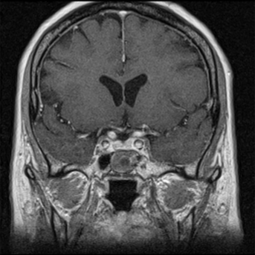Post-contrast T1-weighted image, coronal plane: in the sphenoid sinus there is a round structure with peripheral enhancement – implanted muscle with fascia.