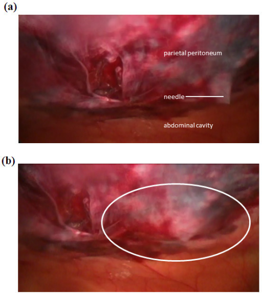 Laparoscopic view of infiltration of liposome bupivacaine at 12-mm port site. (a) Insertion of needle into deep tissue layers. Advancement of needle is stopped just prior to penetration of the parietal peritoneum. (b) Infiltration of liposome bupivacaine and dispersion of fluid to form a wheal (outlined by white oval). This process was repeated in four quadrants around the site of the trocar to form a field block. Photographs courtesy of Peter M. Bertin, DO.