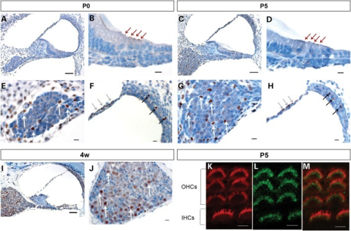 Sik3 is expressed in cochlear structures at different developmental stages. Mouse cochlear sections were stained with primary Sik3 antibody (brown) and counterstained with haematoxylin (blue). A, B, E and F: at the day of birth (P0), Sik3 expression was detected in the apex of inner and outer hair cells (B, red arrows), in the perilymph-facing layer of the Reissner's membrane (F, grey arrows), near blood vessels of the intermediate layer of the stria vascularis (F, black arrows), as well as in cells of the spiral ganglion (E, white arrows) and cells surrounding the ganglion. C, D, G and H: at 5 days postnatal (P5), Sik3 expression was found in the hair cells (D, red arrows) and small cells of the spiral ganglion (G, white arrows). I and J: at 4 weeks postnatal, Sik3 expression remained in the spiral ganglion (J, white arrows), Reissner's membrane and stria vascularis but could not be detected in the apex of the hair cells (I). K, L and M: confocal imaging of Sik3 expression in the stereocilia at 5 days postnatal (L, green), compared with Phalloidin expression (K, red) showed that Sik3 was expressed in the region around the base of the stereocilia (M, merged image of K and L). IHCs, inner hair cells; OHCs, outer hair cells. Scale bars: A, C and I: 50 µm; B, D, E, F, G, H and J: 10 µm; K, L and M: 5 µm.