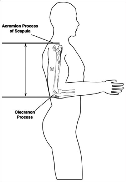 Subject position for upper arm length and midpoint (htt | Open-i