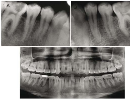 A) Pre operative radiograph revealing unusual root cana | Open-i