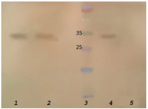 Western blot analysis of H. pylori strains using specific anti-33 KDa pAb.1: S13 (strain investigated for pAb production), 2: S15, 3: MW standard, 4: positive control: a recombinant OipA protein (21), 5: negative control
