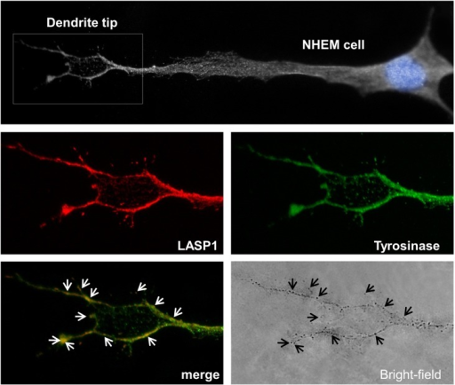 Immunofluorescence of LASP1 and tyrosinase in NHEM cells.Black and white image of a NHEM cell with highlighted blue nucleus and circled enlarged dendrite tip (upper panel). LASP1 (red) and tyrosinase (green) immunofluorescence at the dendrite tip of the NHEM cell (middle panels). Co-localization of the merged LASP1-tyrosinase complex (white arrows) with pointed melanosomes (black arrows) in the bright-field image at the dendrite tip of the NHEM cell (lower panels).