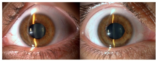 Bilateral iris atrophy correlated with the ablation zone and middilated pupils (due to the probable ischemic damage of the iris sphincter muscle).