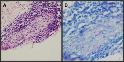 Pre-therapy histopathologic analysis showing (left leg): (A) plasmocytic and lymphocytic infiltration surrounding dermal nerve and Schwann cells and inflammatory cell infiltrated into nerve tract (Hematoxylin and Eeosin [H&E] staining ×400), and (B) positive staining for lepra bacilli (4+) (acid-fast bacilli [AFB] stain).