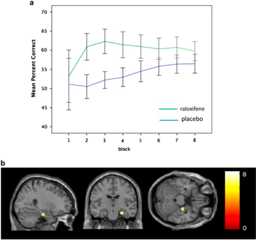 (a) Effects of raloxifene relative to placebo on probabilistic association learning in people with schizophrenia. Cumulative percentage correct at each functional magnetic resonance imaging (fMRI) trial block is shown during probabilistic association learning in the placebo (blue line) and raloxifene (green line) conditions. (b) Effects of raloxifene relative to placebo on neural activity during probabilistic association learning in people with schizophrenia. Raloxifene>placebo, (x, y, z=27, −16, −24), T=8.29, z=5.18, family-wise error rate (FWE) corrected (whole brain), p=0.009, parahippocampal gyrus/hippocampus. Yellow areas show significantly increased blood oxygenation level-dependent (BOLD) signal during raloxifene treatment relative to placebo. The corresponding cluster information is provided in Supplementary Table S1.
