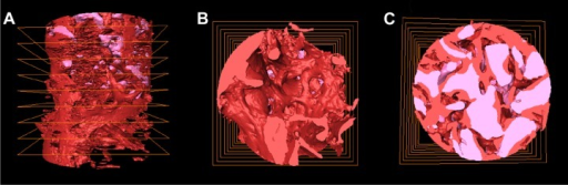 The 3D visualization image of bone biopsy specimen acquired by SR-μCT.Notes: Whole bone specimen containing bone substitutes (Bio-Oss®), newly formed bone (red), bone substitutes (Bio-Oss®, pink). (A) Side view, (B) top view, and (C) cross section.Abbreviations: SR-μCT, synchrotron radiation X-ray micro-computed tomography; 3D, three-dimensional.