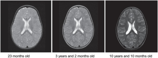 Brain MRI of the index patient.T2-weighted axial images at 23 months, 3 years and 2 months showing delayed myelination, and at 10 years and 10 months myelination has normalized.
