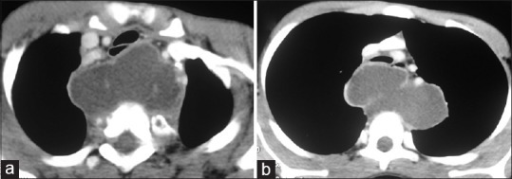 (a and b) Computed tomography (CT) of the chest depicting the cystic lesion posterior to the trachea