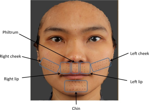 3D image showing 77 facial pre-marked landmarks; left cheek (18 landmarks), right cheek (18 landmark), left upper lip (7 landmarks), philtrum (6 landmarks), right upper lip (7 landmarks) and chin region (21 landmarks).