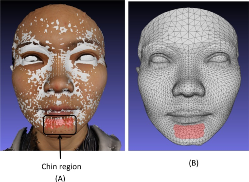 (A) Superimposed conformed mesh baseline (grey) and baseline textured image showing the 21 landmarks of the chin region and the region in red selected on the baseline conformed mesh. (B) The conformed mesh showing the chin region in red selected on the baseline conformed mesh used to assess simulated mandibular surgery. This allows direct comparison with the 21 chin region landmarks.