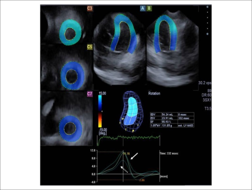 "Apical 4-chamber (A) and 2-chamber (B) views and short–axis views (C3, C5,C7) at different levels of the left ventricle (LV) extracted from thethree-dimensional (3D) echocardiographic dataset are shown in the patientwith Ebstein's anomaly. The 3D image of the LV and calculated LV volumetricand functional characteristics (EDV: end-diastolic volume; ESV: end-systolicvolume; EF: ejection fraction) are also demonstrated together with LV apical(white arrow), mid-ventricular and basal (dashed arrow) rotations in thesame counterclockwise direction, confirming absence of the LV twist, called""rigid body rotation""."