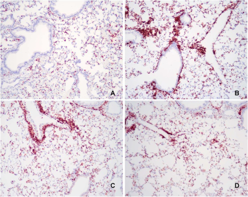 Representative light microscopy images of lung tissue.Lung tissues were stained with rat anti-mouse CD45 after mice were fed their respective foods for 12 weeks. They were sensitized and challenged with saline or OVA starting at 8 weeks. (A) Only circulating leukocytes are seen in control mice fed standard rodent food and sensitized and challenged with saline (Negative Control). (B) Mice fed standard rodent food and sensitized and challenged with OVA (Positive Control) or (C) Corn Oil-enriched food exhibit a marked increase in CD45+ inflammatory cells, particularly peribronchial infiltrates. (D) Overall, there were less CD45+ inflammatory cells in mice fed Fish-Oil enriched food compared with mice fed control food (Positive Control; P = 0.04). Original magnification 25X.