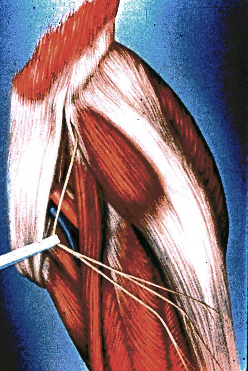 left inguinal region; upper thigh; lateral femoral cutaneous nerve; external abdominal oblique muscle; aponeurosis; tensor fascia lata muscle; gluteus maximus muscle; anterior superior iliac spine; sartorius muscle; femoral nerve; femoral artery; femoral vein; pectineus muscle; adductor longus muscle; rectus femoris muscle; iliotibial tract; iliac crest