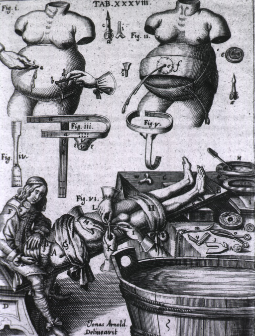 <p>Three-part plate showing surgical procedure for demonstrating instruments in relief of ascites.</p>