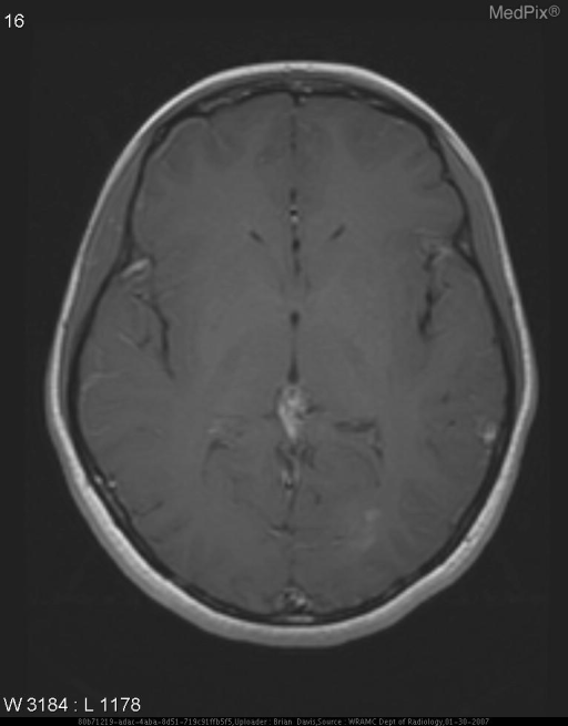 After treatment with steroids and 11 days after initial MRI. The previously noted enhancement in the right side of the brain has resolved on the current study.  The enhancement adjacent to the posterior horn of the left lateral ventricle is slightly less well demonstrated.  There are no new areas of enhancement.  There are no new areas of abnormal T2 hyperintensity.
