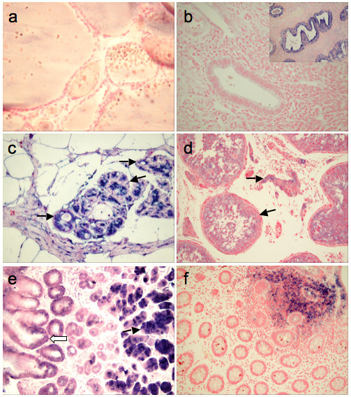 Some normal tissues show Eag1 staining in restricted populations. In the female reproductive system, the follicular epithelia (a) do not show Eag1-staining. The surface and gland epithelia of the resting endometrium are also negative (b). However, in proliferating and secretory activated glands, a strong Eag1-expression can be observed (b. Inset). In the healthy mammary gland (c), Eag1 signals are limited to luminal cells in the acini and ducts of the ductulo-lobular unit, while the basal cell layer is negative (arrow). In the testis (d), interstitial cells and spermatogonia within the ducti seminiferi show a weak to intermediate Eag1 expression. (e) The gastric corpus mucosa express little or no Eag1 (white arrow) except in chief cells (black arrow) where very strong signals are observed. In colon (f), the normal mucosa is negative, while mucosa-associated lymphocytes stain positive.