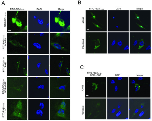 Subcellular localization of FITC-DPs. HtTA (A), A2058 cells and normal human fibroblasts (B and C) plated in 6-well plates overnight were electroporated with 5 μM of the indicated FITC-labeled DPs and then incubated for 48 h. Cells were fixed, stained with DAPI, and analyzed with a laser scanning confocal microscope. Scale bar: 5 μm.