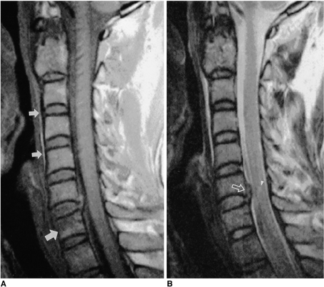 T1- (A) and T2- (B) weighted sagittal MR images in a patient with type III dens fracture (not shown).A. T1-weighted MR image shows compression fracture of C7 (large arrow) and linear prevertebral hemorrhage (small arrows) that resulted from C2 fracture.B. Note the traumatic disc herniation (open arrow) and a focal compressive myelopathy (arrowhead) at the disc level of C7-T1.
