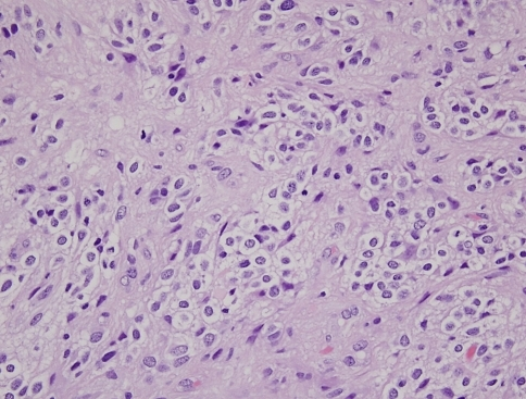 Hematoxylin-eosin stained biopsy specimen under high magnification shows tumor cells with the sharply defined cell borders, clear cytoplasm, and rounded nuclei
