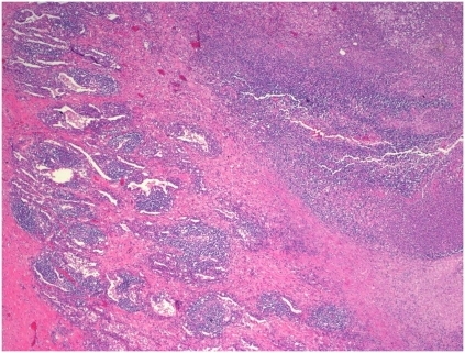 Histopathology of pandemic A(H1N1)/cMRSA co-infection.Patient 5, right lower lobe lung, demonstrating areas of necrotizing pneumonia (haematoxylin and eosin, ×40).
