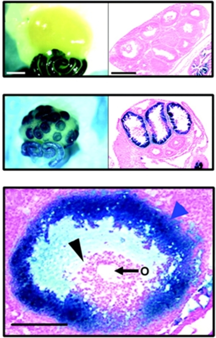 Progesterone receptor (PGR) is expressed in the ovary in a temporal and cell-type specific manner, as demonstrated by PRlacZ mice, which express the lacZ reporter (blue) under the control of the endogenous PGR promoter.Top panels: Ovaries from mice treated with PMSG do not express PGR, while the oviduct expresses high levels.  Middle panels: In response to hCG to mimic the LH surge, lacZ staining is detected within 8h, specifically in the granulosa cells of preovulatory follicles.  Lower panel: In preovulatory follicles, lacZ is detected in mural granulosa cells (blue arrow), but not cumulus cells (black arrow) or the oocyte (O). (Reprinted with permission from Ismail et al., 2002).  Copyright 2002, The Endocrine Society.