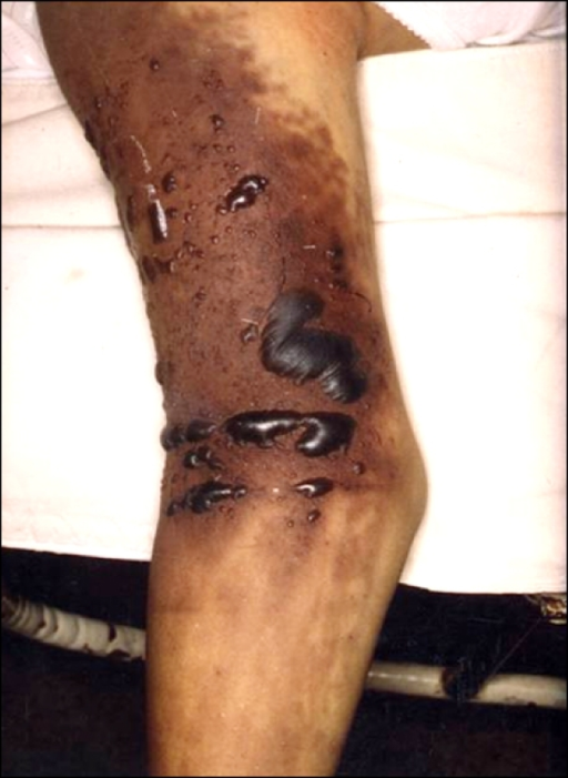 Edema, cyanosis, and dusky purplish discoloration with necrotic tense blisters on the right upper extremity.