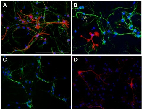 Cellular composition of neuron-astrocyte cultures.Composite fluorescence photomicrographs of neuron-astrocyte cultures that were immuno-stained with A–C) the neuronal marker MAP-2 (green) together with A) astrocyte marker GFAP (red) or B) the microglia marker CD11b (red) or C) the oligondendrocyte marker CNPase (red, not detected). D) Dopaminergic neurons were stained with the dopaminergic neuron marker TH (red). Nuclei were counterstained with DAPI; scale bar is 100 µm.