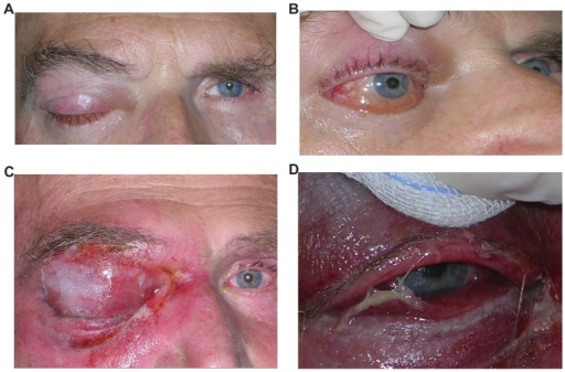 (A and B) Photographic documentation of ptosis and conjunctival chemosis involving the right eye. (C and D) Massive extension at the right ocular adnexa with ptosis, proptosis, and periorbital tissue infiltration.