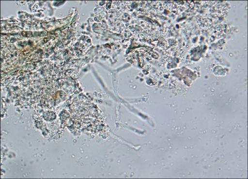 Direct Microscopic Examination Of Scraping From A Potas