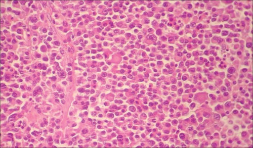 Microscopic aspect of the tumor of the patient in the case report