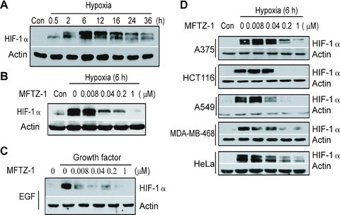 MFTZ-1 decreases HIF-1α protein accumulation. MDA-MB-231 cells were exposed to hypoxia for the indicated times (A), to hypoxia and gradient concentrations of MFTZ-1 for 6 hrs (B) and to pre-starved MDA-MB-231 cells were exposed to the indicated concentrations of MFTZ-1 for 4 hrs after stimulated by epidermal EGF (50 ng/ml) for 4 hrs at normoxia (C). (D) HC T116, A375, A549, MDA-MB-468 and HeLa cells were treated with the indicated concentrations of MFTZ-1 at hypoxia for 6 hrs. Then the cells were collected and detected for HIF-1α and β-Actin by Western blotting. All data shown were representative of three independent experiments.