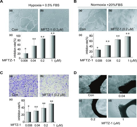 MFTZ-1 inhibits angiogenesis. (A) MFTZ-1 inhibited hypoxia-induced HUVECs tube formation. HUVEC cells (1.2 × 104) were incubated in M199 medium supplemented with 0.5% FBS at hypoxia for 10 hrs to form complete tubes. Treatment with MFTZ-1 abrogated hypoxia-induced tube formation. (a) Control; (b) 0.2 μM MFTZ-1; (c) inhibition rates of tube formation were calculated as in the section of Materials and Methods. Values were expressed as means; bars, ±S.D., n= 3. (B) MFTZ-1 inhibited serum-induced HUVECs tube formation. HUVEC cells (1 × 104) were cultured in M199 medium supplemented with 20% FBS at normoxia with or without MFTZ-1. After incubation for 6 hrs at 37°C, capillary networks were photographed and quantified. (a) Control; b. 0.2 μM MFTZ-1; (c) inhibition rates were calculated and expressed as in (A). (C) HUVEC (5 × 104) cells were cultured in a Transwell Boyden Chamber using a polycarbonate filter with a pore size of 8.0 μm coated with a 1% gelatin in serum-free M199 medium with or without MFTZ-1. For migration detection, 20% FBS were added into the lower chamber. After incubation for 6 hrs at 37°C, the migrated cells were photographed and quantified as described in Materials and Methods. (a) Control; (b) 0.2 μM MFTZ-1; (c) inhibition rates of HUVEC migration by MFTZ-1. Values are expressed as means; bars, ±S.D., n= 3. (D) MFTZ-1 inhibited new microvessel outgrowth arising from rat aortic ring. Data shown were representative of three independent experiments. Student's t-tests were conducted to compare drug treatment with each control, respectively, significance was indicated as * for P < 0.05 and ** for P < 0.01.
