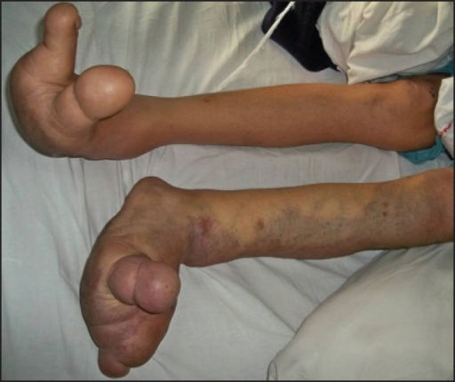 Disproportionate growth of toes with vascular malformations