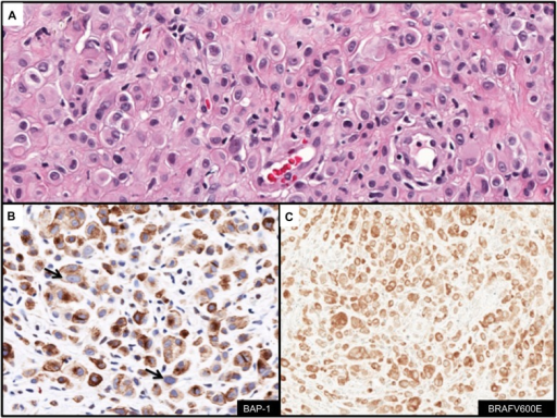 Immunohistochemcial evaluation of BAP-1 and BRAFV600E status in melanocytic lesions.Notes: (A) Melanocytic nevus composed of sheets of epithelioid-shaped melanocytes in the dermis (H&E stain, ×400); (B) Anti-BAP-1 demonstrates loss of nuclear expression in melanocytes (arrows) indicative of the presence of BAP-1 mutation (IHC stain, ×400); (C) Diffuse cytoplasmic expression of anti-BRAFV600E (IHC stain, ×400).Abbreviations: H&E, hematoxylin and eosin; IHC, immunohistochemistry.
