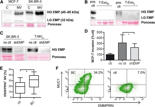 EMMPRIN is expressed on T-MV in vitro and in vivo and contributes to their proinvasive phenotype. (A and B) Western blots showing the expression of highly (HG) and lowly glycosylated (LG) EMMPRIN (EMP) in whole cell lysates (C) and T-MV (A) as well as the corresponding T-Exo (B) of both breast cancer cell lines. (C) Western blots showing stable knockdown of EMMPRIN via shRNA (shEMP) in SK-BR-3 cells and MV (ns ctl, non-sense control). (D) Microinvasion assay of MCF-7 cells exposed to T-MVS (1 µg/ml) from EMMPRIN knockdown cells (mean ± SD, n = 3, *P < 0.01). (E) Total MV from peripheral blood of metastatic breast cancer (BC) patients and matched controls (ctl). The percentage of EMMPRIN-positive MV was quantified by flow cytometry. (F) Double staining for EMMPRIN and MUC1 of MV from a BC and a control patient (representative density plots).