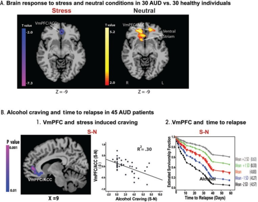 Hypoactive ventromedial prefrontal cortex (VmPFC) response to stress, alcohol craving, and relapse risk. (A) Hypoactive VmPFC response to stress but hyperactive response to neutral-relaxing condition in 30 patients with alcohol use disorder (AUD) compared with 30 healthy control subjects. AUD patients showed hypoactive VmPFC and anterior cingulate cortex (ACC) response to stress compared with demographically matched healthy control subjects (P < 0.05; whole-brain familywise error correction [FWE] corrected). (B) Neural correlates of alcohol craving and relapse in 45 AUD patients. (B-1) Whole-brain correlation analyses indicated that hypoactive VmPFC/ACC response to stress, compared with a neutral condition, was associated with increased alcohol craving during stress (r = −0.55; R2 = 0.30; P < 0.01 whole-brain FWE corrected). No other regions were significantly associated with craving in this whole-brain voxel-based analysis. (B-2) Estimated survival functions for time to initial alcohol relapse are presented to illustrate the increasing risk of relapse with signal changes in the VmPFC hypoactivity during stress relative to the neutral condition: mean (in red) +1 (green) and +2 (gray) standard deviation (SD) above the mean, and −1 (blue) and −2 (black) SD below the mean. Cox proportional hazards regression analysis also indicates that hypoactive response during stress-neutral predicted a shorter time to initial alcohol use (χ2 = 5.37, P < 0.05; hazard ratio [HR] = 0.22, confidence interval [CI] = 0.06–0.79) as well as heavy-drinking relapse (χ2 = 5.5, P < 0.05; HR = 0.21, CI = 0.06–0.77). S-N = stress-neutral.NOTE: This figure is reproduced with the permission of the American Medical Association (Seo et al. 2013).