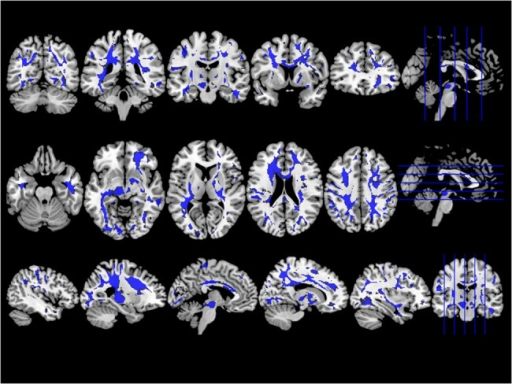 Group comparison of SWI images between ALS patients and healthy controls.ALS patients showed lower SWI signal in deep white matter tracts, including corpus callosum, corticospinal and superior longitudinal fascicle most prominent in its frontal parts. The statistical parametric maps are displayed at a threshold P < 0.05 and corrected for multiple comparisons using FWE.