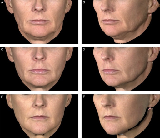 Aesthetic outcomes with Juvéderm Voluma XC for this 48-year-old woman before treatment (A, B), at 6 months (C, D), and at 24 months (E, F) after treatment with 6.3 mL of Juvéderm Voluma XC in the midface.